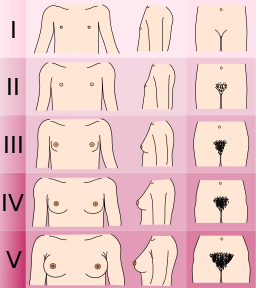 A chart of the five Tanner stages of breast development, showing progressively larger, prominent, and rounder breasts.